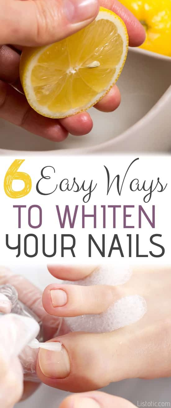 Beauty Hack: How to whiten your nails and toenails at home with these 6 DIY tricks! Baking soda, lemon juice, hydrogen peroxide, toothpaste.... nail polish tips, hacks and ideas. Listotic.com