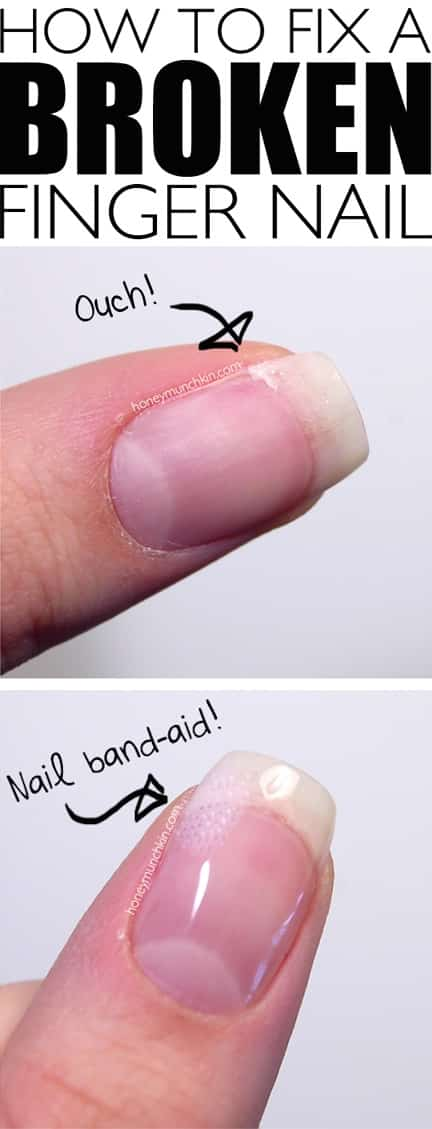 Beauty hack for your poor broken finger nails! -- Clever DIY life hacks every girl should know! For organization, crafts, ideas, beauty, school, home or just little tips and tricks that will make your life easier. Listotic.com