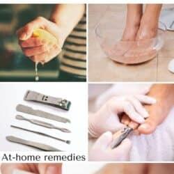 Pedicure foot care.