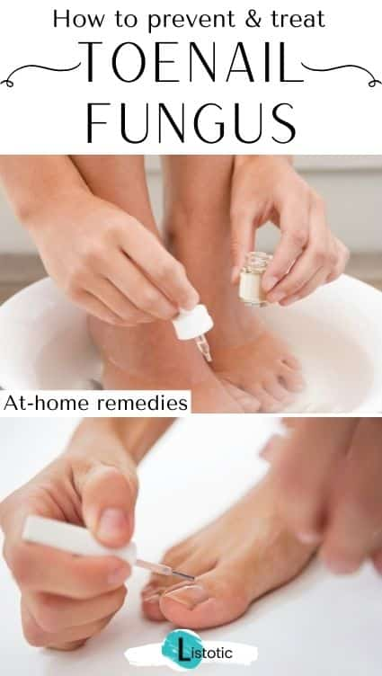 How to prevent toenail fungus.