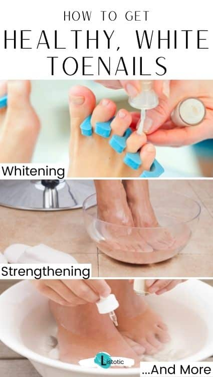 How to have healthy, whiter toenails.